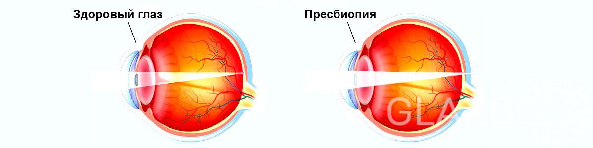 старческое зрение или возрастная пресбиопия