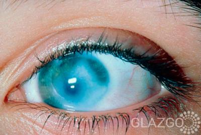 Дистрофия-сетчатки-глаз