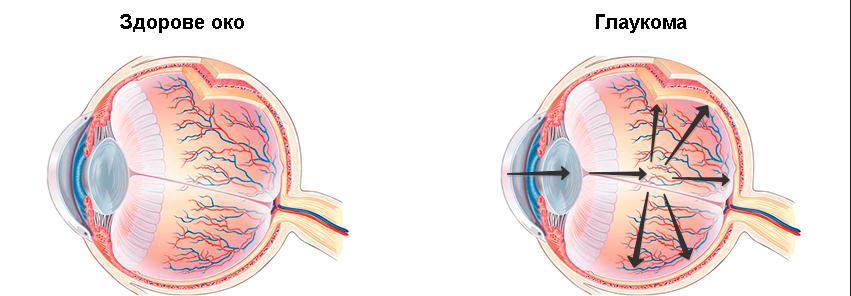 Здорове око та з глаукомою